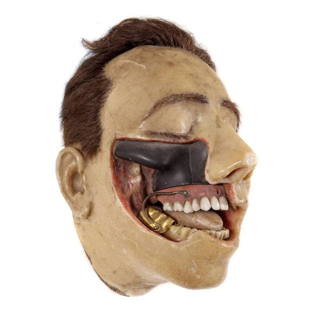 Highly Detailed Early 1800s Wax Dental Model