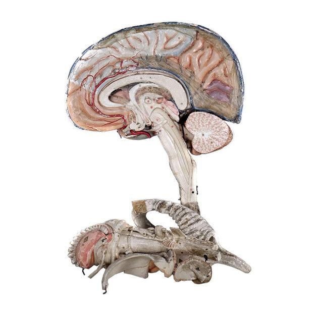Large 19th Century Dr. Auzoux Paper Mache Model of Brain